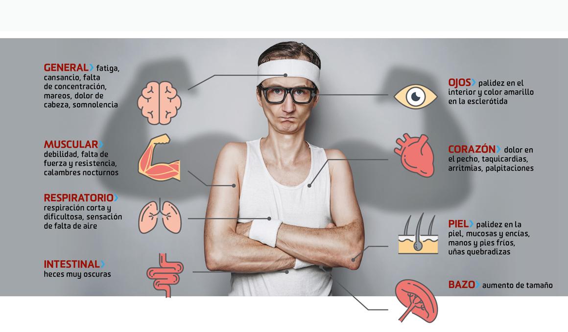 Síntomas más comunes de anemia ferropénica o por deficiencia de hierro